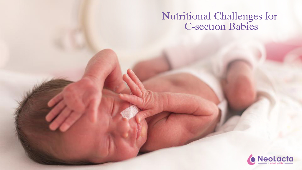 Nutritional challenges for Babies Born through C-section